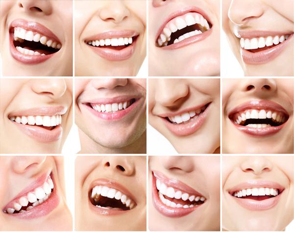 Impianto dentale Roma